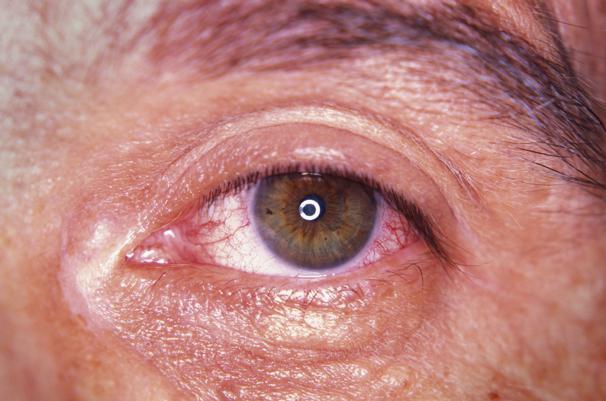 Hos øjenlægen